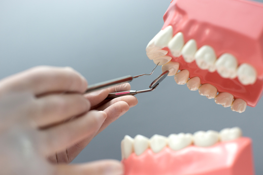Implantes dentales - Omnisalud