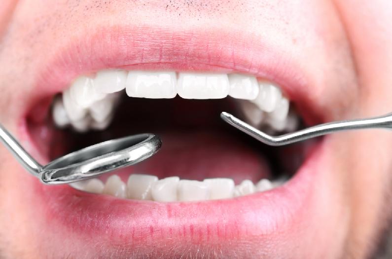 Rehabilitación Oral - Omnisalud